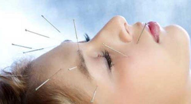 Migren ağrılarına akupunktur engeli