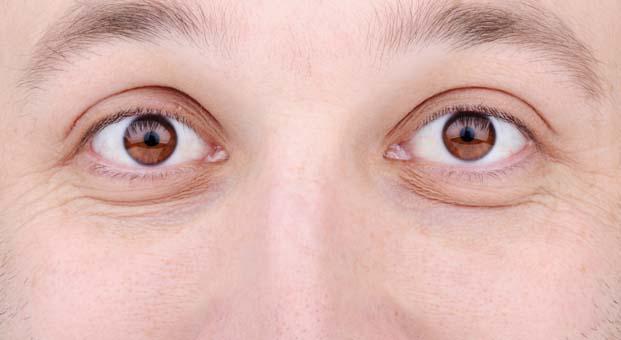 Uykusuzluk göz kapağı sarkmasına sebep oluyor